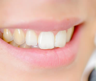 Reasons Your Teeth May No Longer Be White