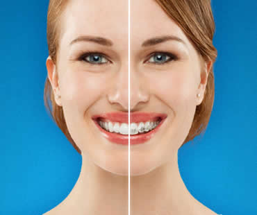 Why Adults Should Choose Invisalign to Straighten Teeth